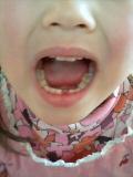 乳歯くん、バイバイ♪