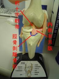 私の膝の状態