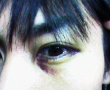 底 骨折 眼窩