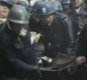 鉄パイプ爆弾負傷 00173