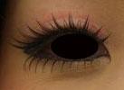 上眼瞼慢性皮膚炎2